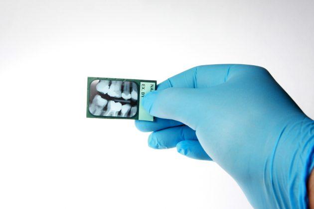 Один из способов диагностирования глубокого кариеса - рентгенография