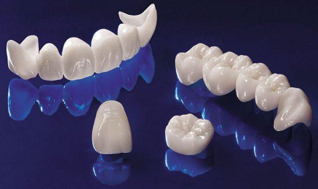 Коронки, в отличие от виниров, покрывают зубы со всех сторон