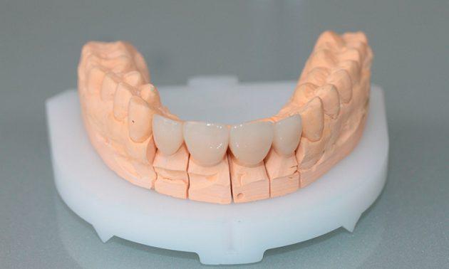 Непрямой метод реставрации зубов винирами имеет больше преимуществ