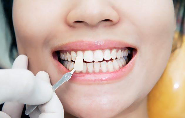 О плюсах и минусах виниров расскажет стоматолог