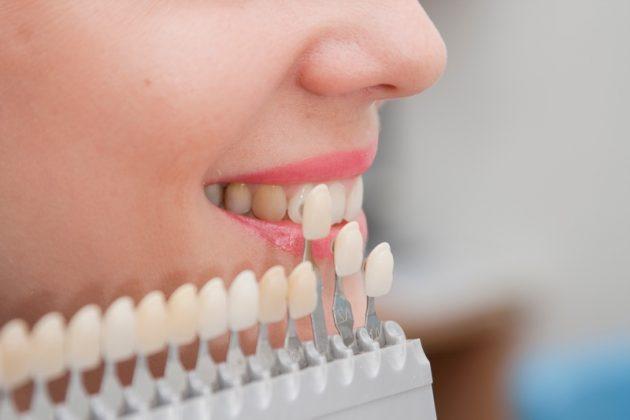 Перед началом реставрации зубов винирами подбирается подходящий оттенок