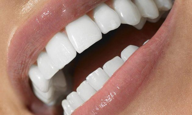 Виниры для зубов что это видео