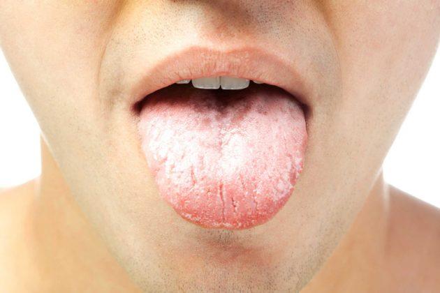 Кандидозный стоматит на языке