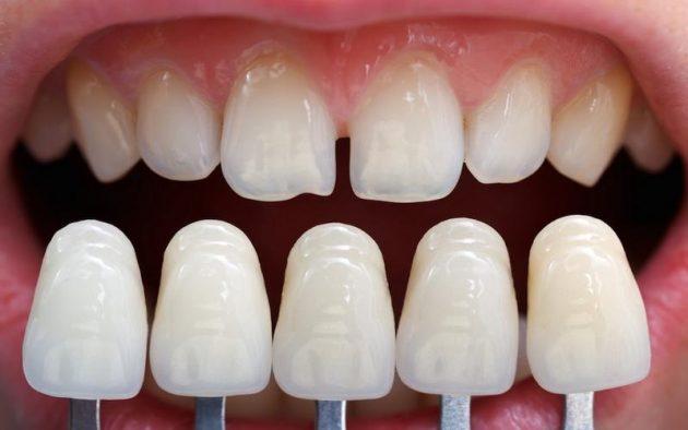 Показания к установке фарфоровых виниров на зубы эстетические