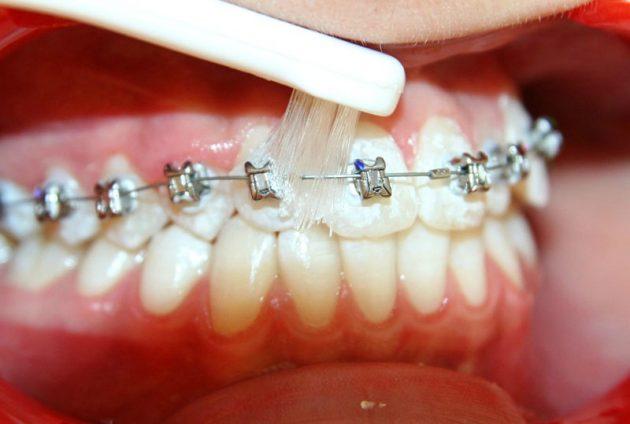 Монопучковая зубная щетка для брекетов