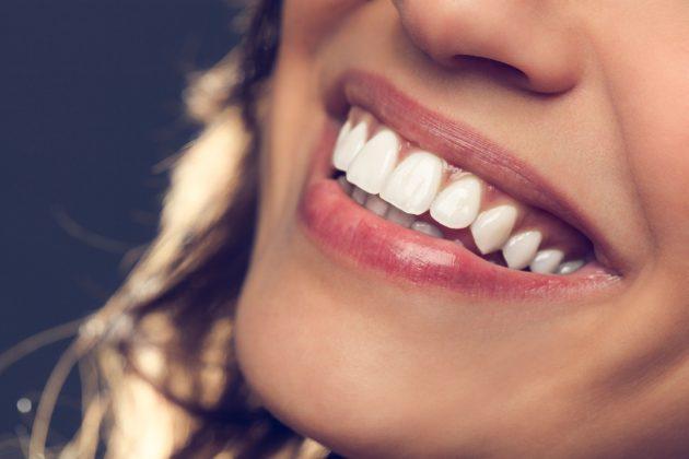 Перед тем, как воспользоваться капами для отбеливания зубов, нужно изучить их плюсы и минусы