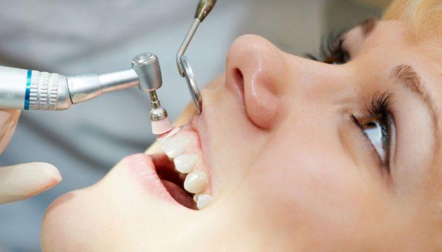Профессиональная чистка уберет зубной камень