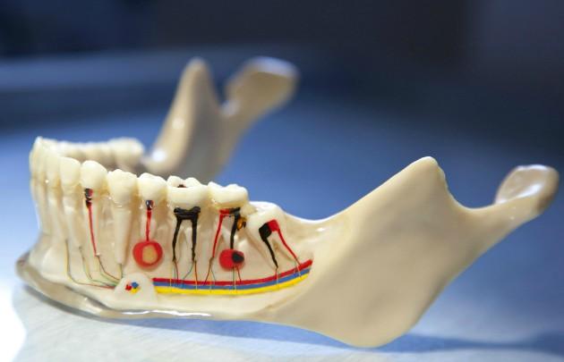 Удаление корня зуба проводится по показаниям