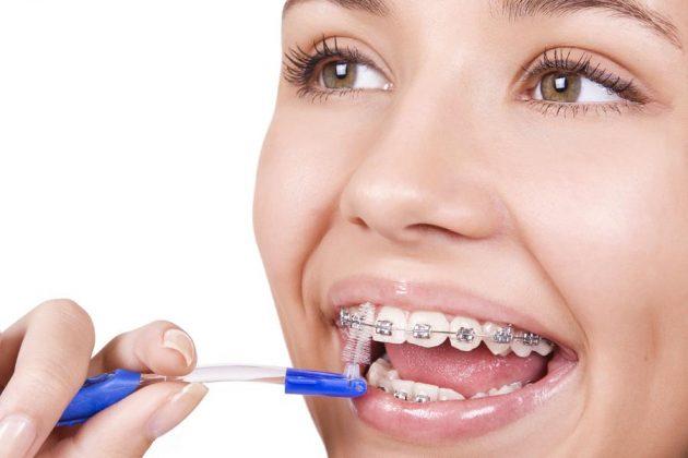 Зубная щетка-ершик для брекетов