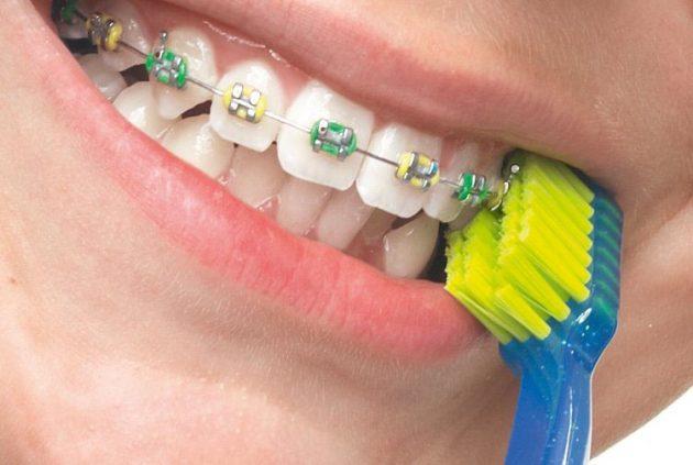 Зубная щетка для брекетов V-образная