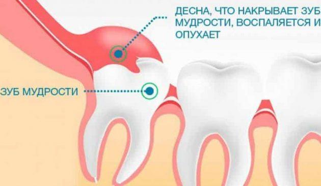 Патологическое прорезывание зуба мудрости