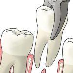 Лунка после удаления зуба