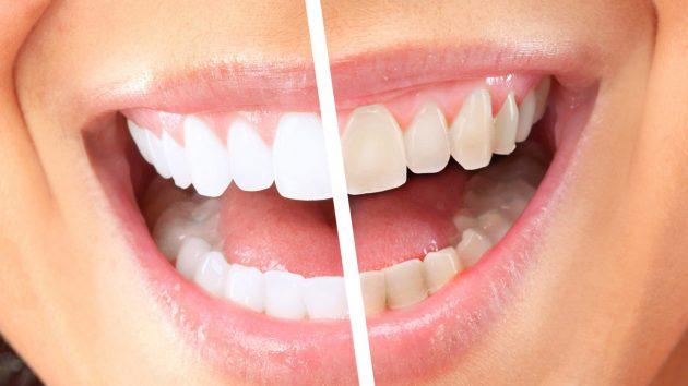 Зубная лента для отбеливания зубов