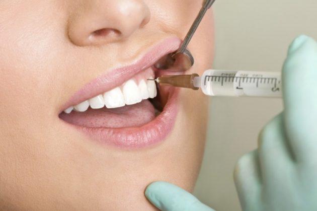 Проведение анестезии в стоматологии