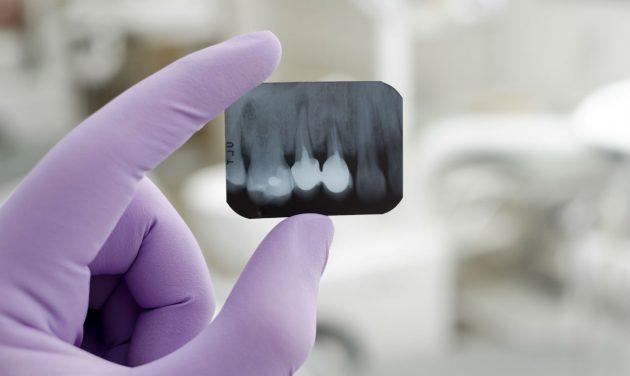 Диагностика периодонтита зуба