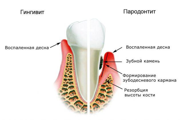 Гингивит и пародонтит - одни из причин боли в деснах