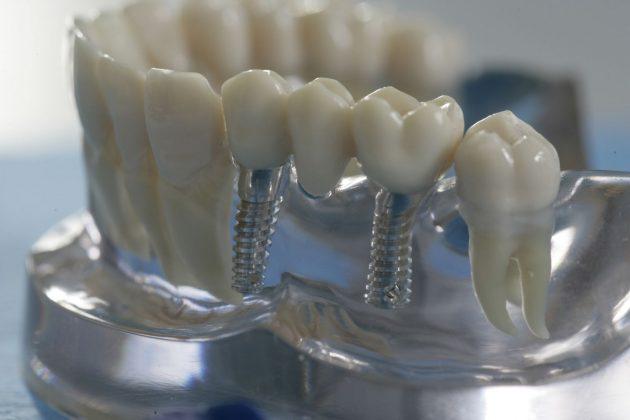 Имплантация зубов без обточки