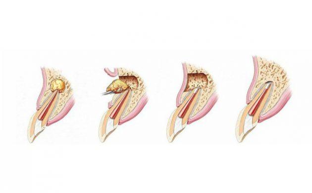 Лечение гранулемы зуба