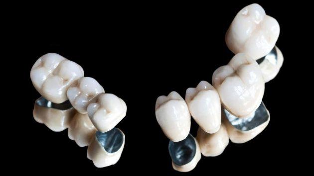 Металлокерамические коронки для постановки на имплант