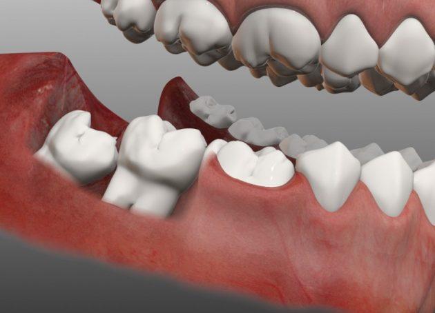 Прорезывающийся зуб мудрости как одна из причин боли в десне