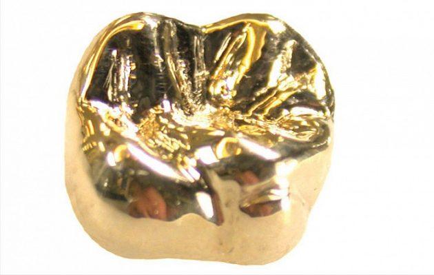 Золотые коронки