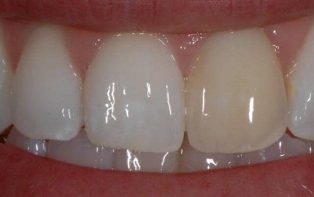 зуб потемнел после удаления нерва