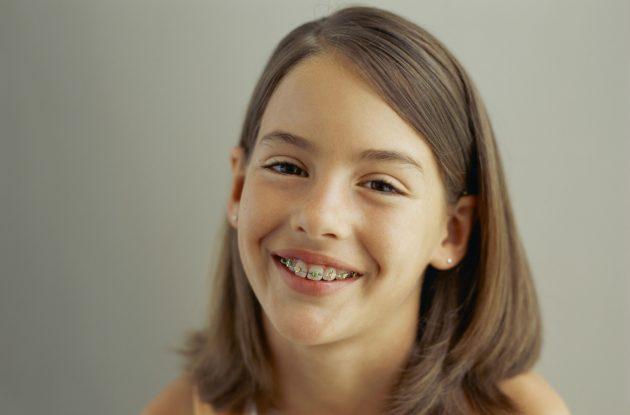 Девочка с брекетами