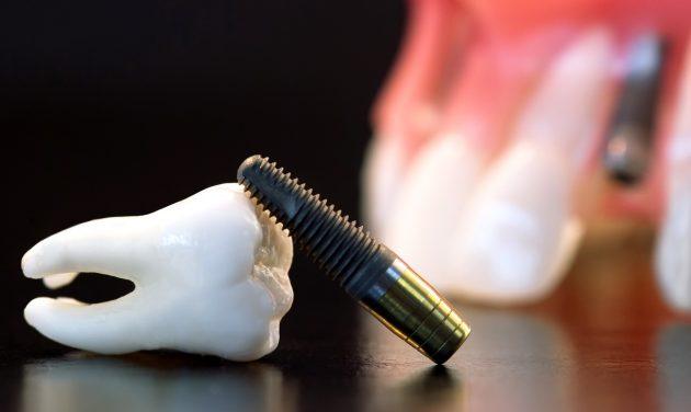 Искусственный имплантат