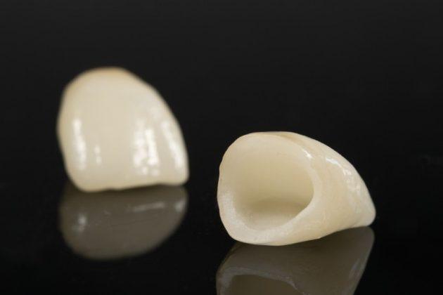 Керамические коронки неотличимы от настоящих зубов