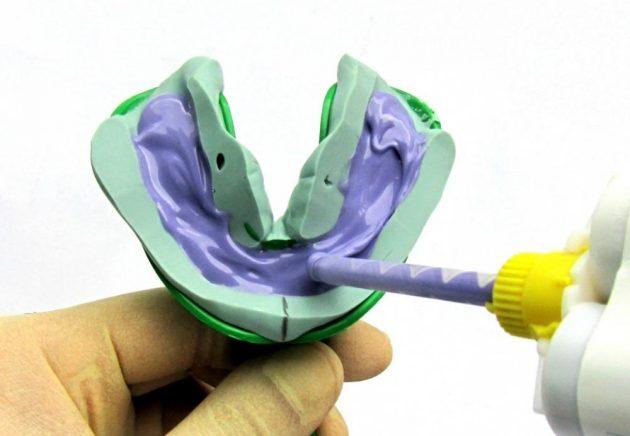Снятие слепков зубов перед процедурой микропротезирования