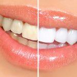 результаты домашнего отбеливания зубов