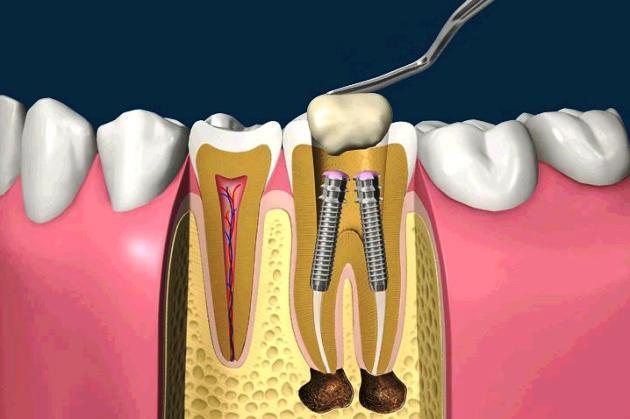 установка штифтов в зуб