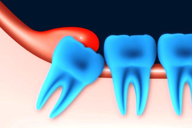Воспаление зуба мудрости: что делать, если воспалилась десна около зуба мудрости