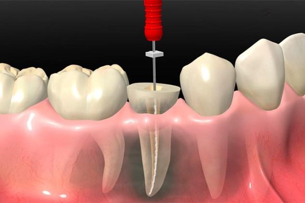 Перепломбировка канал зуба