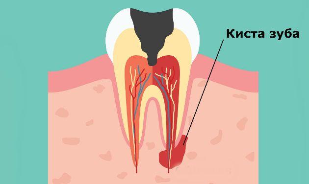 Киста верхнего корневого зуба
