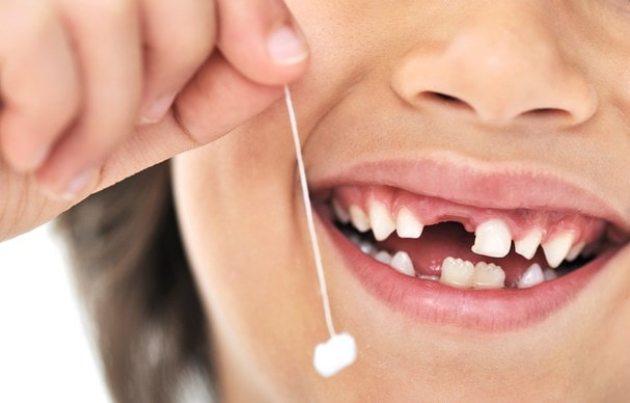 детские коронки выпадают вместе с молочным зубом