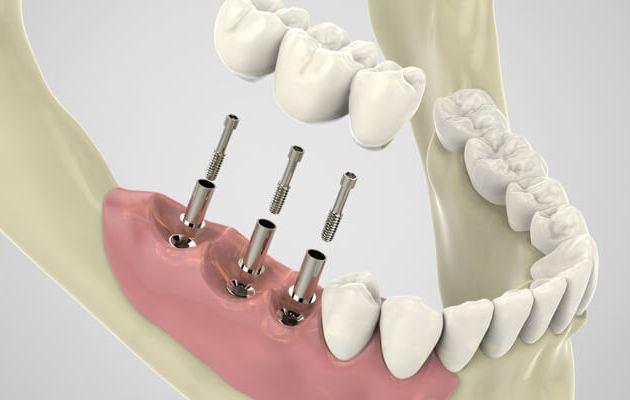 Имплантация зубов и их недостатки