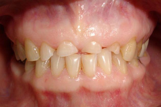 повышенная стираемость зубов вследствие глубокого прикуса