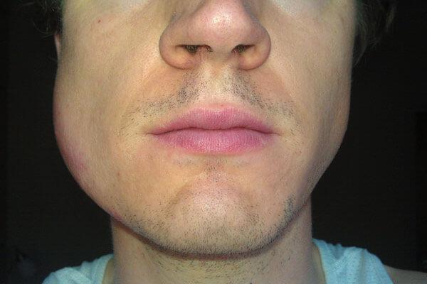 опухшая щека после удаления зуба