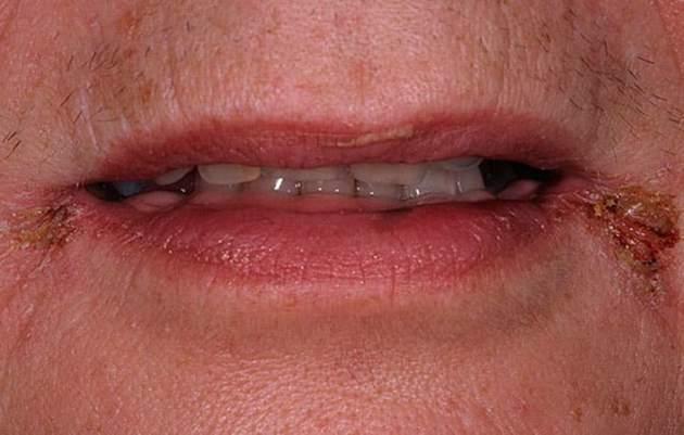заеды в уголках губ