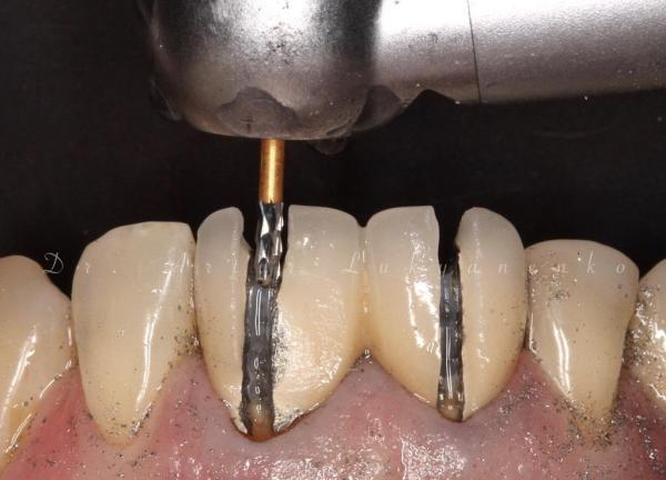 Бережно снять коронку. Как снять коронку с зуба?RedWhite Клиника Современной Стоматологии. Стоматология Тверь