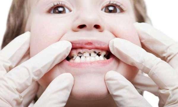 налет на зубах у ребенка становится причиной кариеса