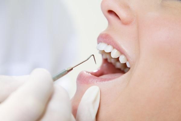 Новый материал в стоматологии: пломба будет вечной