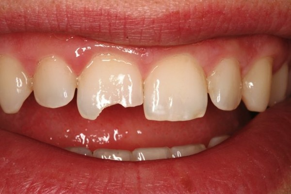 Если откололся зуб, то нужно сразу же обратиться к врачу
